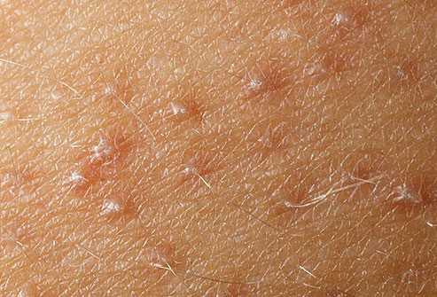 How To Get Rid of Small Bumps