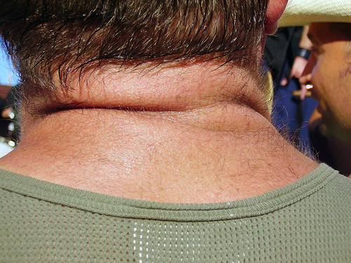 How To Get Rid of Neck Fat