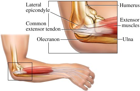 How to Get Rid of Golfer Elbow