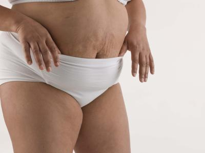 Getting Rid of Droopy Belly after Hysterectomy