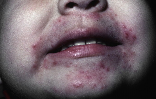 Different Types of Rashes - Parents