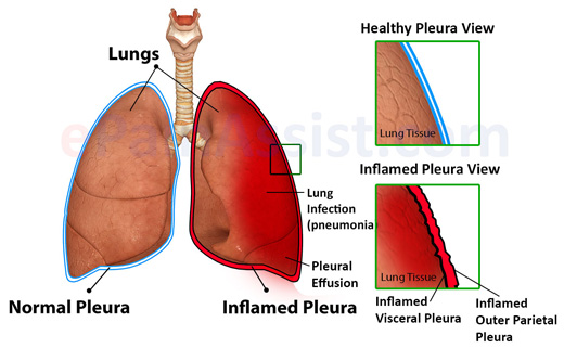 an analysis of the symptoms and treatment of pleurisy in the lungs Pleurisy is treated with medicines, surgery and other methods to lesson symptoms and to treat the cause it is important to see a doctor if you think you have pleurisya pleurisy caused by some lung disease is treated, first of all, by identifying the underlying disease and giving whatever treatment is available for itrelieving symptomsto limit.