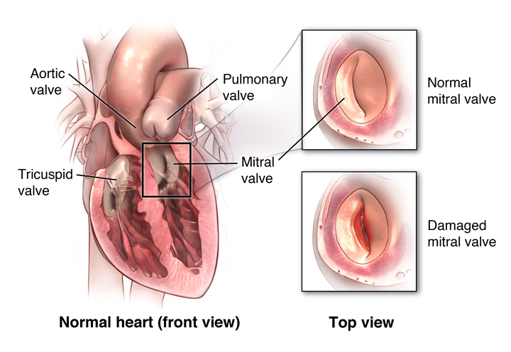 Anterior cut view of heart. Healthy and damaged mitral valve shown.