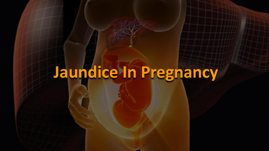 Jaundice During Pregnancy