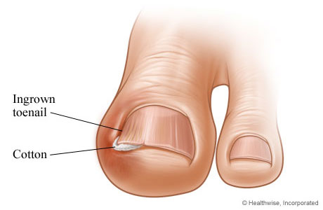 how to get rid of false nails