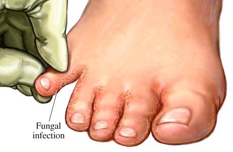 atheletes foot