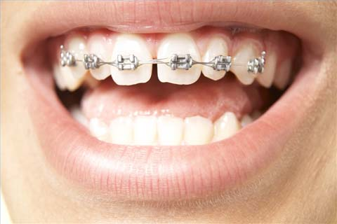 Deal With Having Braces
