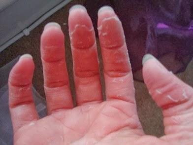 peeling-fingertips