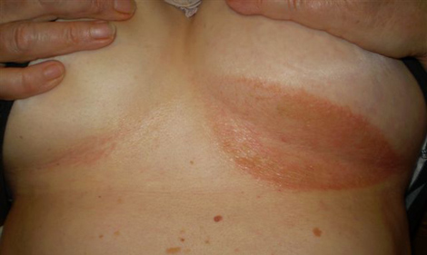 Rash Under Breasts