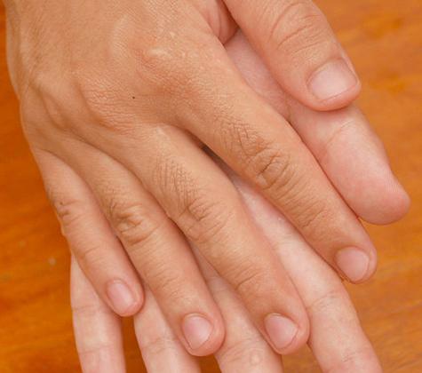 Fiberglass Itch