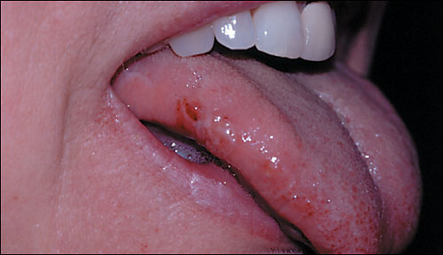 bitten tongue