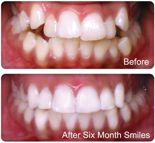 Treat Crooked Teeth Fast