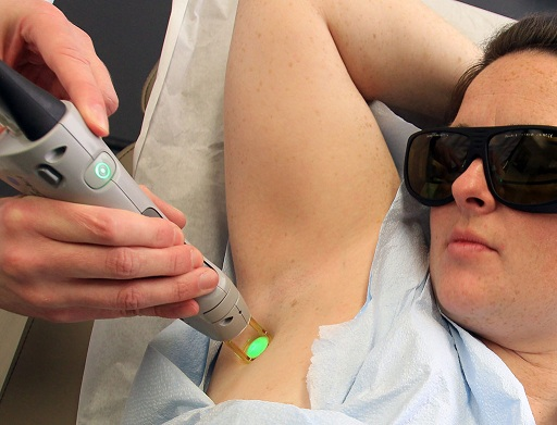 laser underarms hair removal