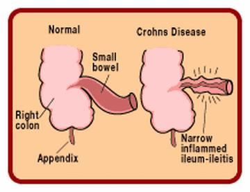 How To Get Rid of Crohn's Disease