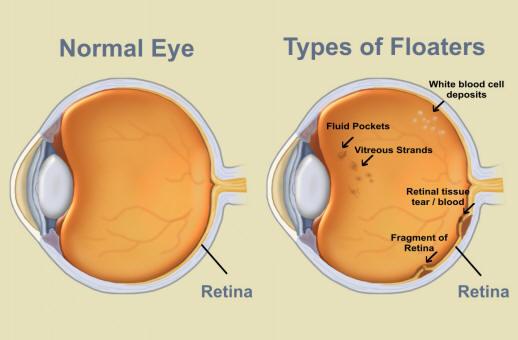 Eye Floaters