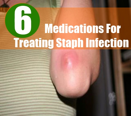 How To Treat Staph Infection