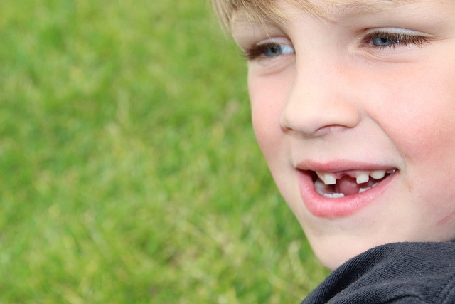Child Chipped Tooth