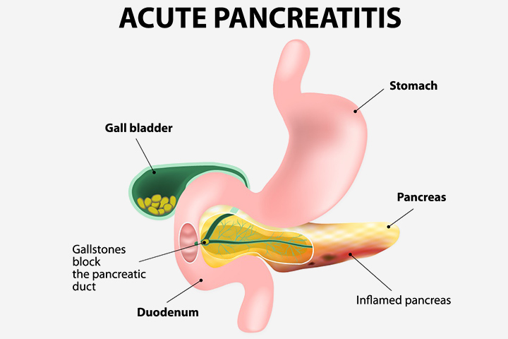 Acute Pancreatitis In Children