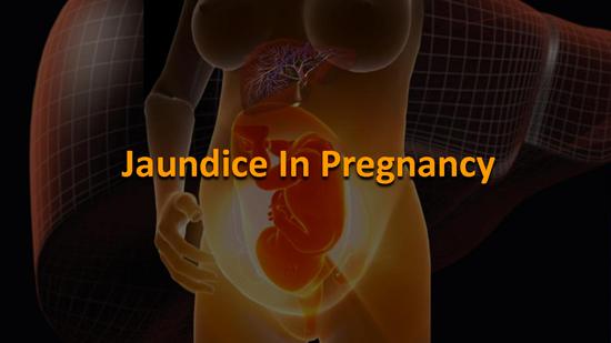 Jaundice During Pregnancy
