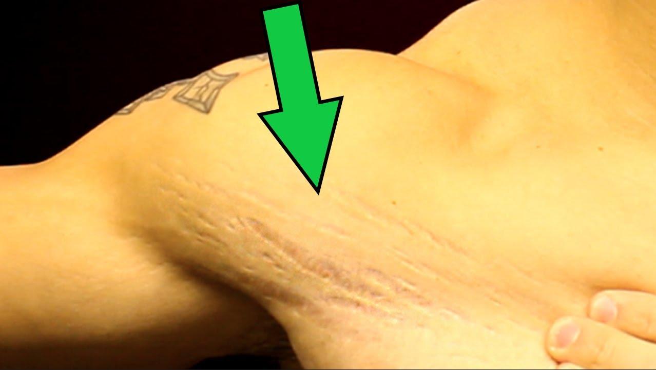 men stretch marks